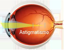 ojo-astigmatismo