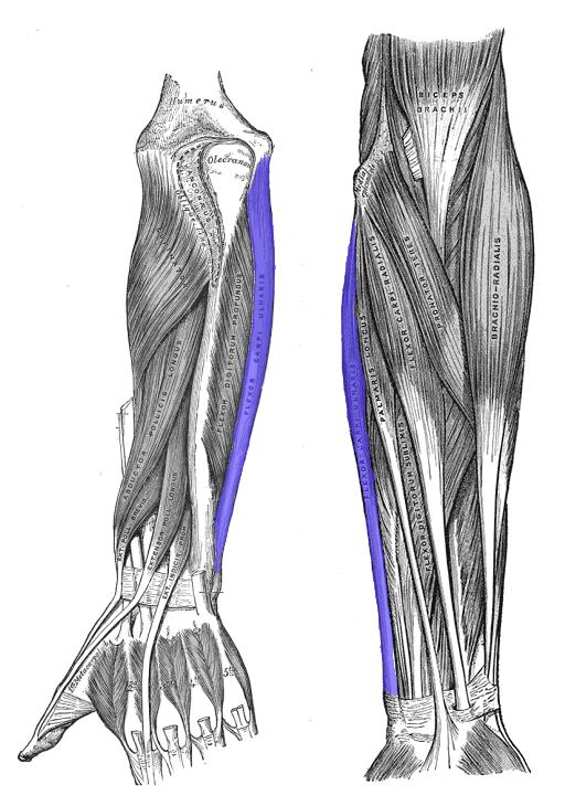 tendinitis brazo