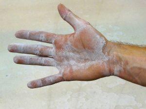 cloruro de magnesio lesiones prevencion